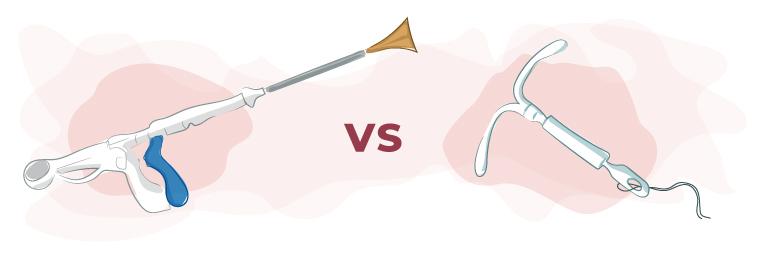 NovaSure of Mirena: welke behandeloptie is effectiever?